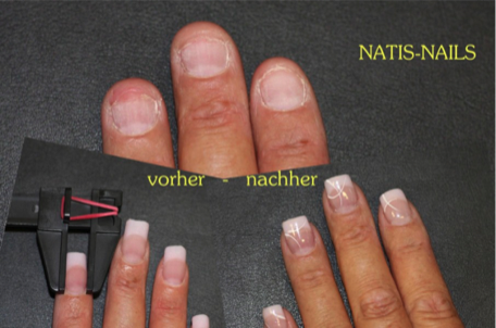 Das Syndrom der grünen Nägel als zu behandeln